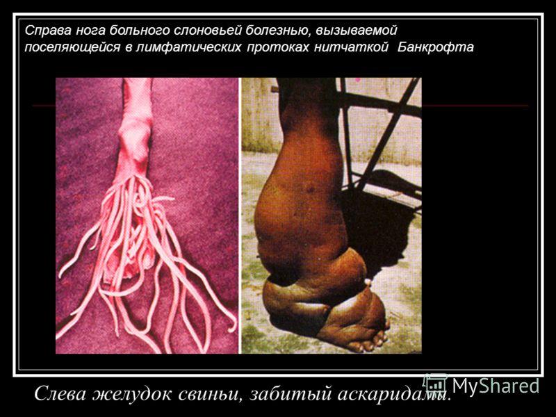 черви в мозге человека фото