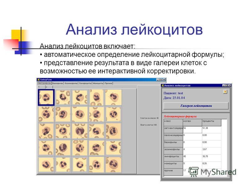 лейкоцитарной формулы;