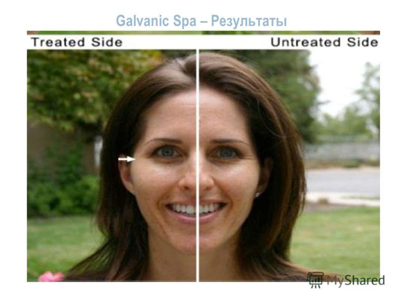 Galvanic Spa – Результаты