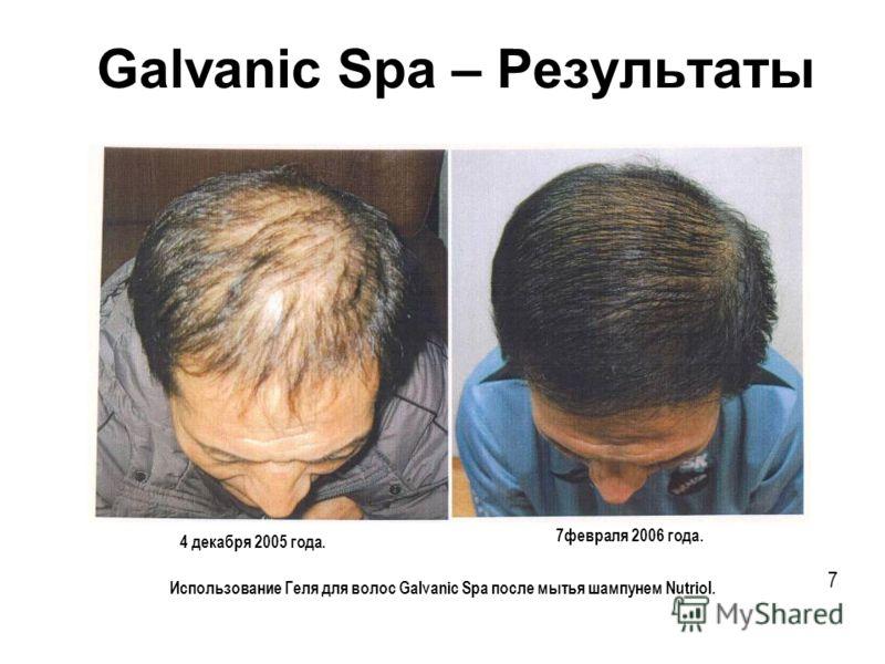 Использование Геля для волос Galvanic Spa после мытья шампунем Nutriol. Galvanic Spa – Результаты 4 декабря 2005 года. 7февраля 2006 года. 7