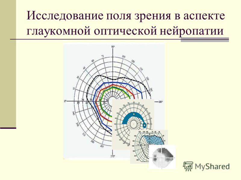 Исследование поля зрения в аспекте глаукомной оптической нейропатии