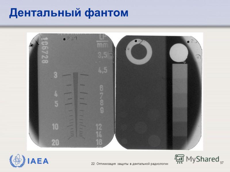 IAEA 22: Оптимизация защиты в дентальной радиологии 57 Дентальный фантом