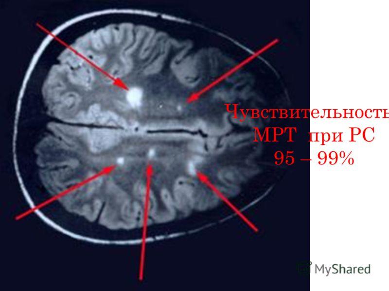 Чувствительность МРТ при РС 95 – 99%
