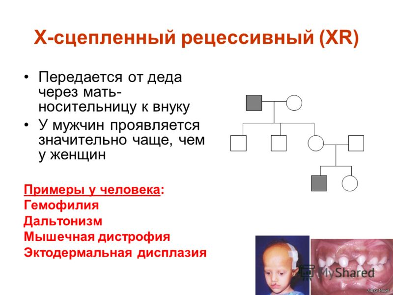 Х-сцепленный рецессивный (XR) Передается от деда через мать- носительницу к внуку У мужчин проявляется значительно чаще, чем у женщин Примеры у человека: Гемофилия Дальтонизм Мышечная дистрофия Эктодермальная дисплазия