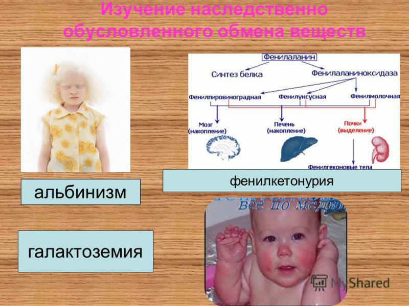 Изучение наследственно обусловленного обмена веществ альбинизм фенилкетонурия галактоземия