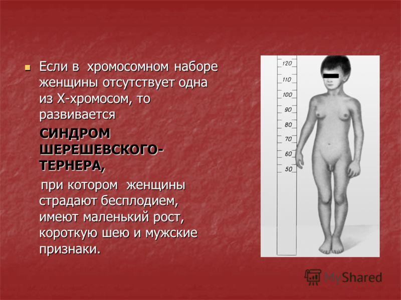 Наличие лишней Х-хромосомы у мужчин (ХХY) приводит к Наличие лишней Х-хромосомы у мужчин (ХХY) приводит к СИНДРОМУ КЛАЙНФЕЛЬТЕРА, СИНДРОМУ КЛАЙНФЕЛЬТЕРА, выражающегося в бесплодии, гигантском росте, умственной отсталости, женском типе скелета. выража