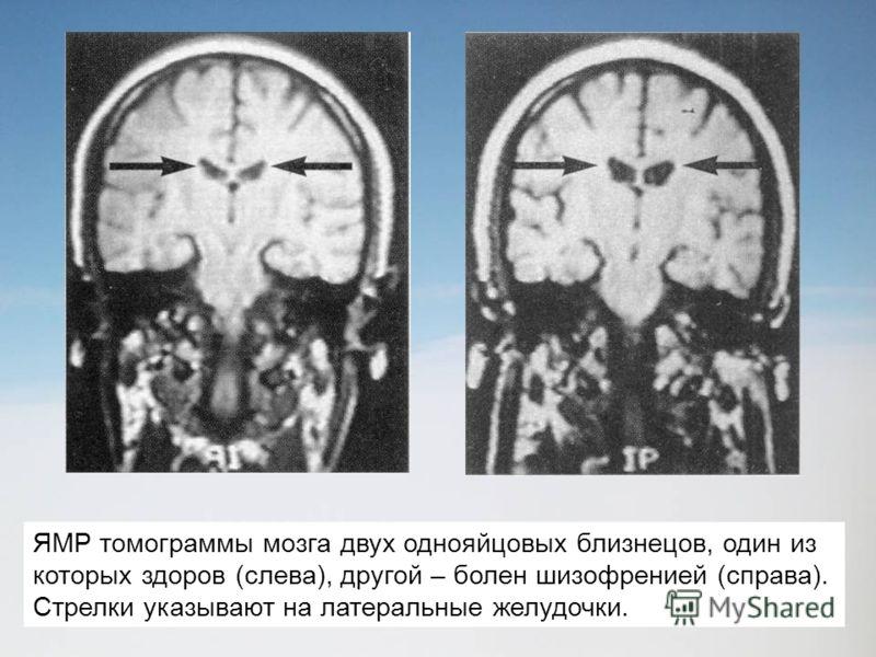 ЯМР томограммы мозга двух однояйцовых близнецов, один из которых здоров (слева), другой – болен шизофренией (справа). Стрелки указывают на латеральные желудочки.