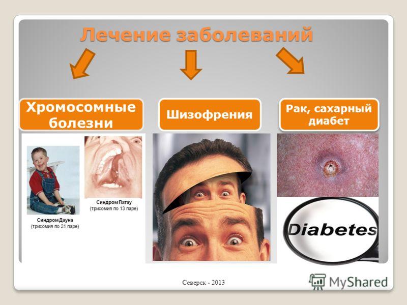 Лечение заболеваний Хромосомные болезни Шизофрения Рак, сахарный диабет Северск - 2013