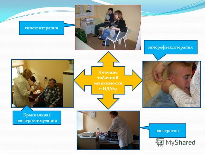 Лечение табачной зависимости в НД9 иглорефлексотерапия гипокситерапия Краниальная электростимуляция электросон