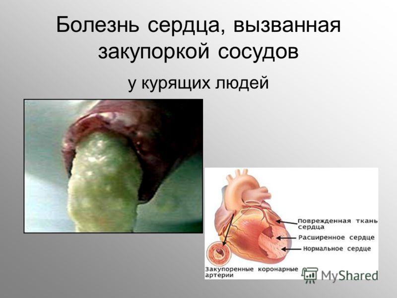 Болезнь сердца, вызванная закупоркой сосудов у курящих людей