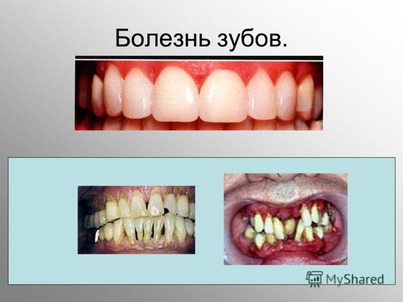 Болезнь зубов.