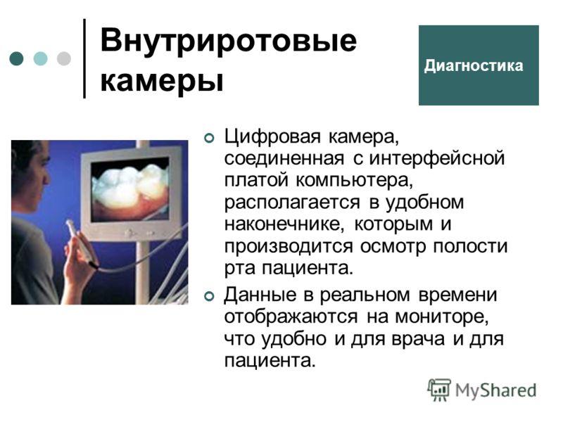 Внутриротовые камеры Цифровая камера, соединенная с интерфейсной платой компьютера, располагается в удобном наконечнике, которым и производится осмотр полости рта пациента. Данные в реальном времени отображаются на мониторе, что удобно и для врача и