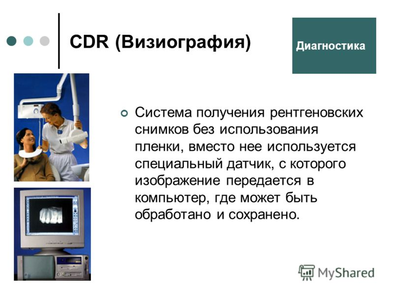 CDR (Визиография) Система получения рентгеновских снимков без использования пленки, вместо нее используется специальный датчик, с которого изображение