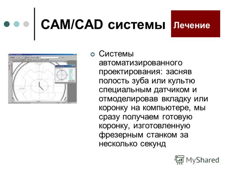 CAM/CAD системы Системы автоматизированного проектирования: засняв полость зуба или культю специальным датчиком и отмоделировав вкладку или коронку на компьютере, мы сразу получаем готовую коронку, изготовленную фрезерным станком за несколько секунд
