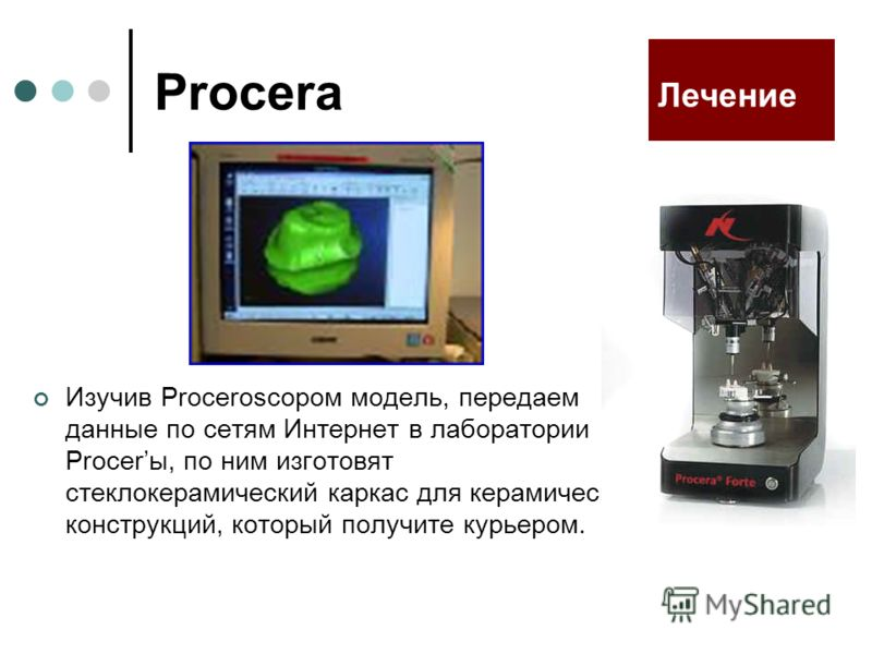 Procera Изучив Proceroscopом модель, передаем данные по сетям Интернет в лаборатории Procerы, по ним изготовят стеклокерамический каркас для керамических конструкций, который получите курьером. Лечение