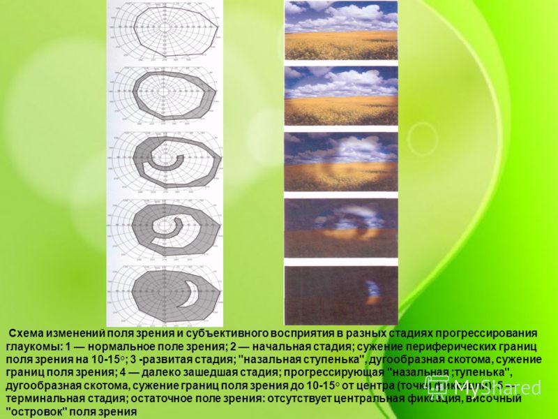 Схема изменений поля зрения и субъективного восприятия в разных стадиях прогрессирования глаукомы: 1 нормальное поле зрения; 2 начальная стадия; сужение периферических границ поля зрения на 10-15°; 3 -развитая стадия;