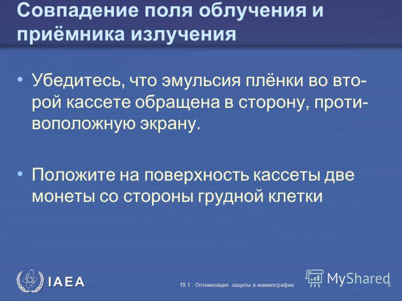 IAEA 19.1 : Оптимизация защиты в маммографии5 Совпадение поля облучения и приёмника излучения Убедитесь, что эмульсия плёнки во вто- рой кассете обращена в сторону, проти- воположную экрану. Положите на поверхность кассеты две монеты со стороны грудн