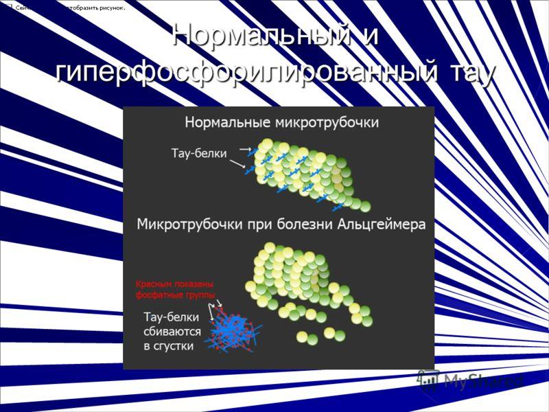Нормальный и гиперфосфорилированный тау