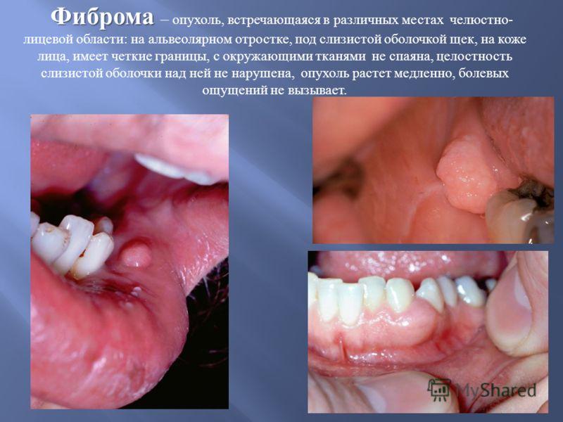 Фиброма Фиброма – опухоль, встречающаяся в различных местах челюстно - лицевой области : на альвеолярном отростке, под слизистой оболочкой щек, на коже лица, имеет четкие границы, с окружающими тканями не спаяна, целостность слизистой оболочки над не