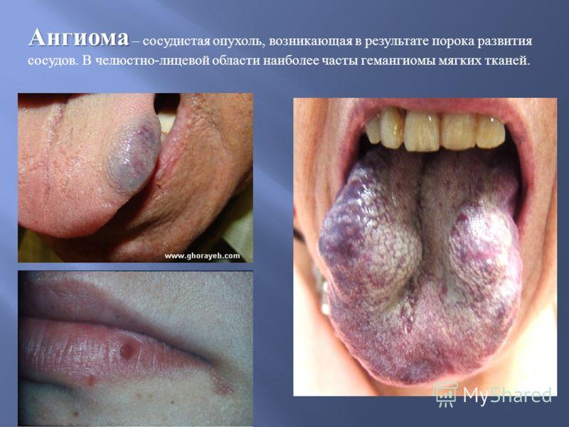 Ангиома Ангиома – сосудистая опухоль, возникающая в результате порока развития сосудов. В челюстно - лицевой области наиболее часты гемангиомы мягких тканей.