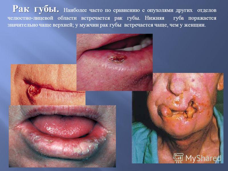 Рак губы. Рак губы. Наиболее часто по сравнению с опухолями других отделов челюстно - лицевой области встречается рак губы. Нижняя губа поражается значительно чаще верхней ; у мужчин рак губы встречается чаще, чем у женщин.