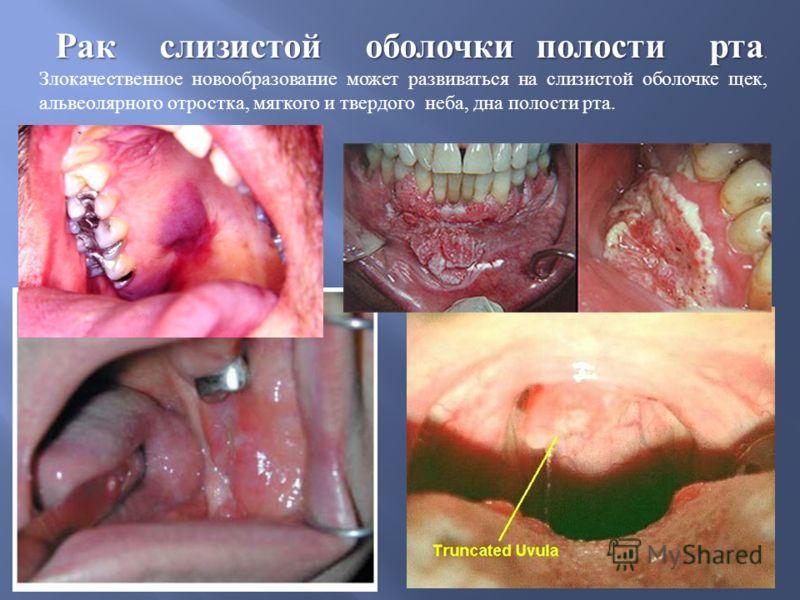 Рак слизистой оболочки полости рта Рак слизистой оболочки полости рта. Злокачественное новообразование может развиваться на слизистой оболочке щек, альвеолярного отростка, мягкого и твердого неба, дна полости рта.