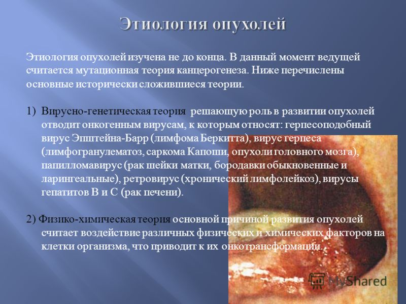 Этиология фото