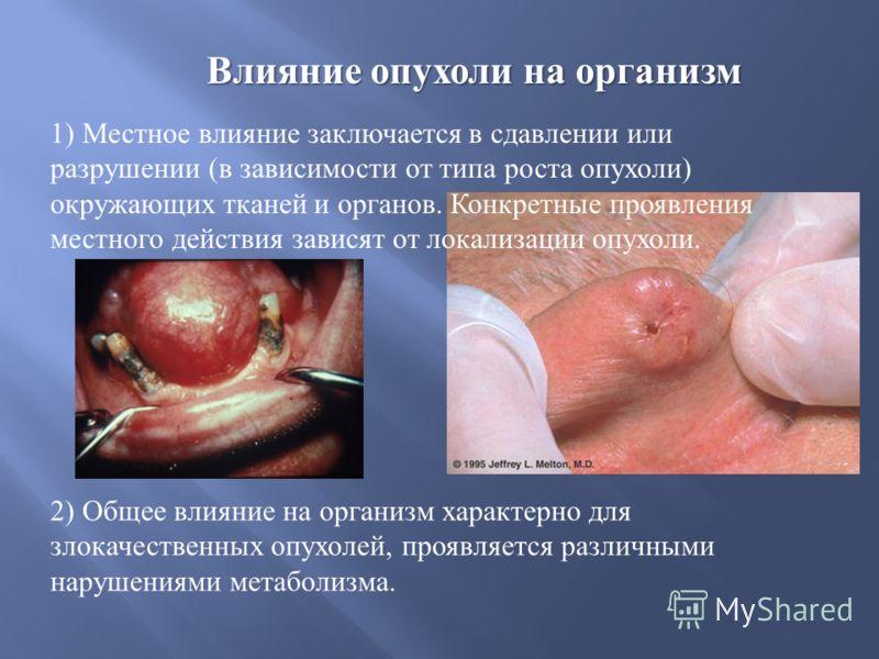 Влияние опухоли на организм 1) Местное влияние заключается в сдавлении или разрушении ( в зависимости от типа роста опухоли ) окружающих тканей и органов. Конкретные проявления местного действия зависят от локализации опухоли. 2) Общее влияние на орг