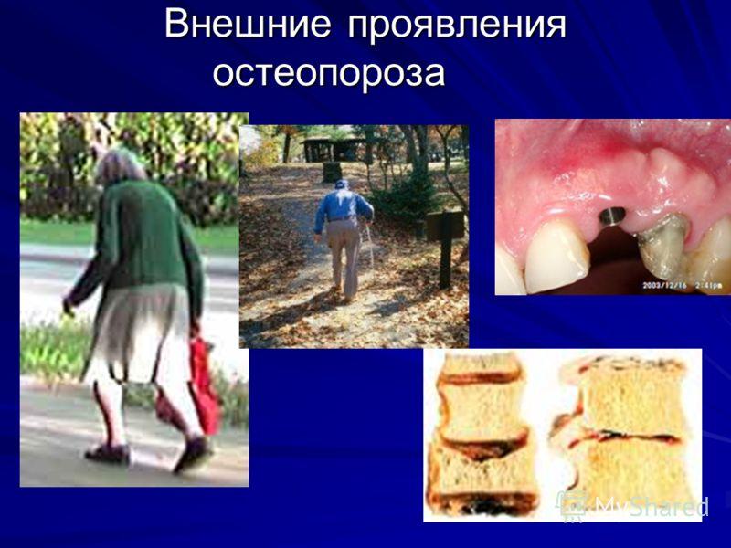 Внешние проявления остеопороза