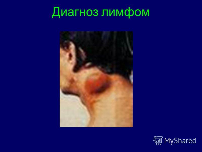 Диагноз лимфом