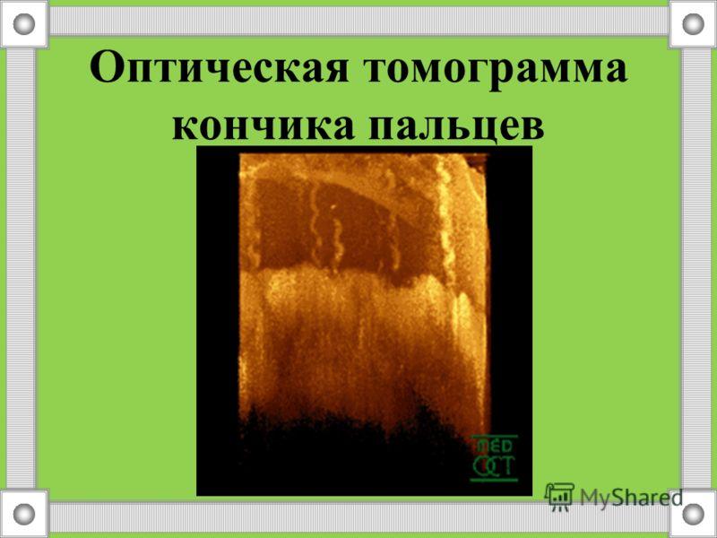 Кожа –это … Кожа – это наружный покров тела, который надежно защищает все находящиеся под ней органы от механических, химических повреждений, препятствует потере воды организмом, проникновению бактерий.