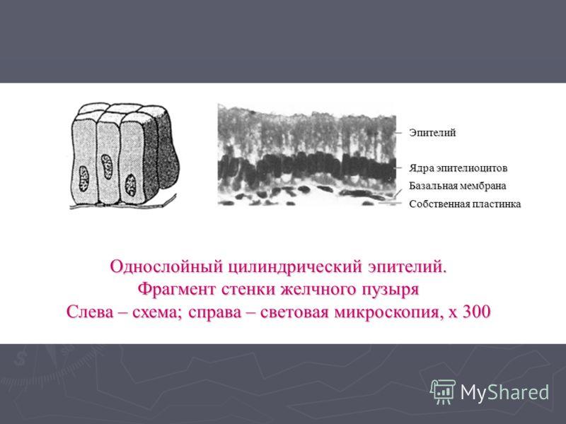 Однослойный цилиндрический эпителий. Фрагмент стенки желчного пузыря Слева – схема; справа – световая микроскопия, х 300 Эпителий Ядра эпителиоцитов Базальная мембрана Собственная пластинка