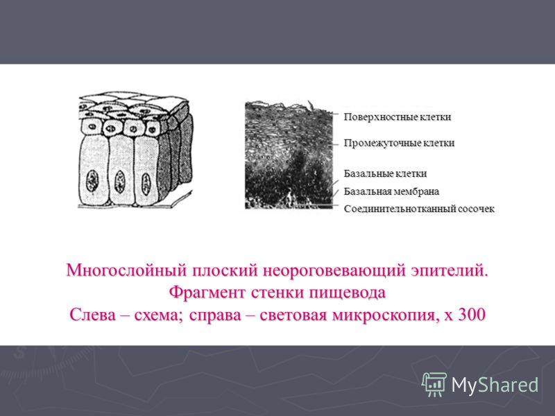 Многослойный плоский неороговевающий эпителий. Фрагмент стенки пищевода Слева – схема; справа – световая микроскопия, х 300 Поверхностные клетки Промежуточные клетки Базальные клетки Базальная мембрана Соединительнотканный сосочек