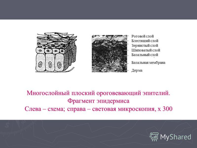 Многослойный плоский ороговевающий эпителий. Фрагмент эпидермиса Слева – схема; справа – световая микроскопия, х 300 Роговой слой Блестящий слой Шиповатый слой Базальный слой Базальная мембрана Дерма Зернистый слой