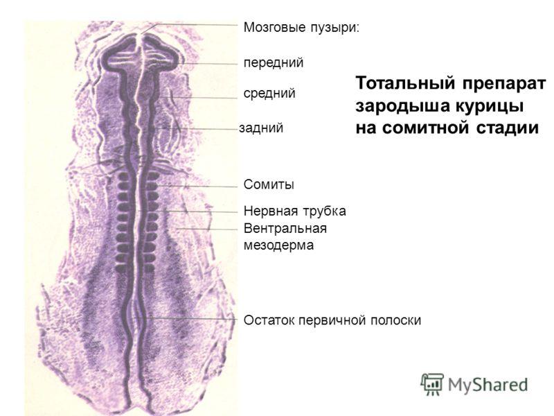 Тотальный препарат зародыша курицы на сомитной стадии Мозговые пузыри: передний средний задний Сомиты Нервная трубка Вентральная мезодерма Остаток первичной полоски