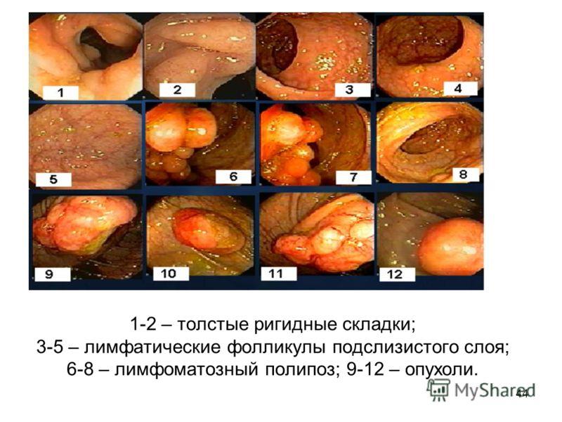 44 1-2 – толстые ригидные складки; 3-5 – лимфатические фолликулы подслизистого слоя; 6-8 – лимфоматозный полипоз; 9-12 – опухоли.