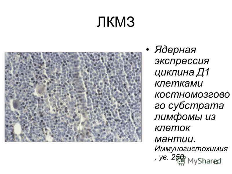 45 ЛКМЗ Ядерная экспрессия циклина Д1 клетками костномозгово го субстрата лимфомы из клеток мантии. Иммуногистохимия, ув. 250