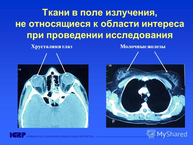 INTERNATIONAL COMMISSION ON RADIOLOGICAL PROTECTION Ткани в поле излучения, не относящиеся к области интереса при проведении исследования Хрусталики глаз Молочные железы