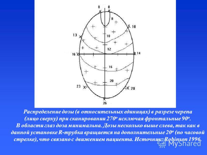 Распределение дозы (в относительных единицах) в разрезе черепа (лицо сверху) при сканировании 270 o исключая фронтальные 90 o. В области глаз доза минимальна. Дозы несколько выше слева, так как в данной установке R-трубка вращается на дополнительные