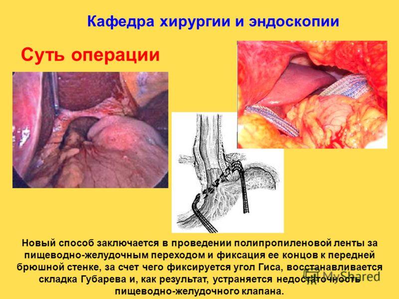 Кафедра хирургии и эндоскопии Новый способ заключается в проведении полипропиленовой ленты за пищеводно-желудочным переходом и фиксация ее концов к передней брюшной стенке, за счет чего фиксируется угол Гиса, восстанавливается складка Губарева и, как