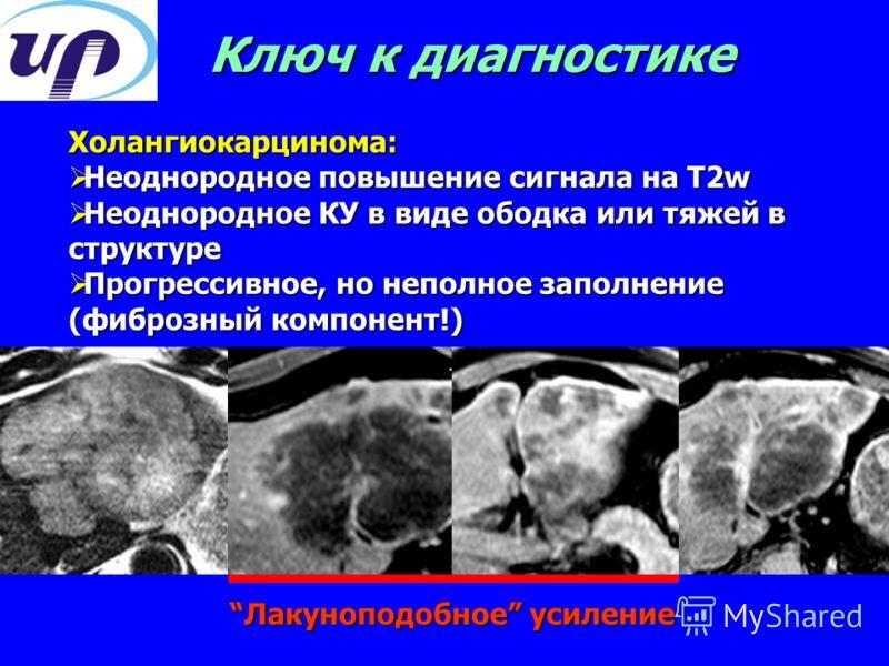 Холангиокарцинома: Неоднородное повышение сигнала на T2w Неоднородное повышение сигнала на T2w Неоднородное КУ в виде ободка или тяжей в структуре Неоднородное КУ в виде ободка или тяжей в структуре Прогрессивное, но неполное заполнение (фиброзный ко