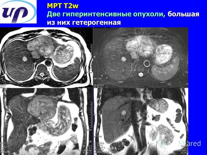 МРТ T2w Две гиперинтенсивные опухоли, большая из них гетерогенная