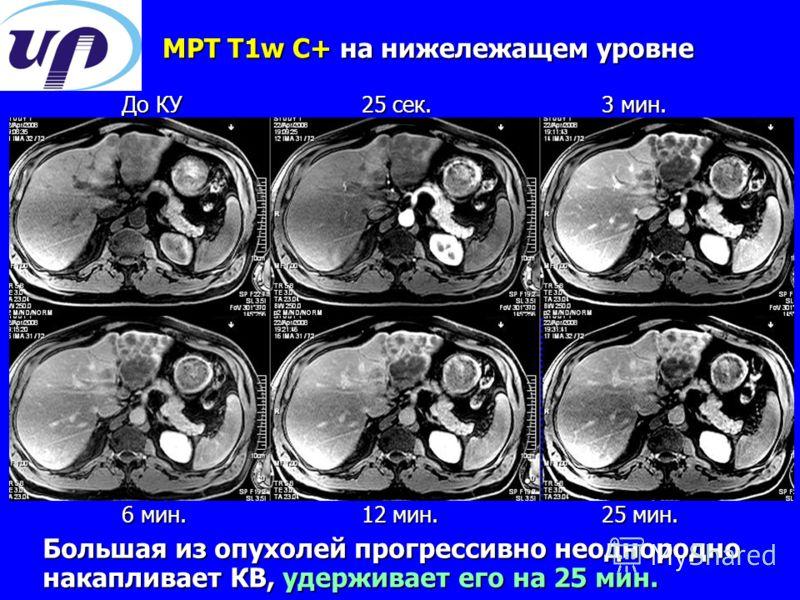 МРТ T1w С+ на нижележащем уровне Большая из опухолей прогрессивно неоднородно накапливает КВ, удерживает его на 25 мин. До КУ25 сек.3 мин. 6 мин.12 мин.25 мин.