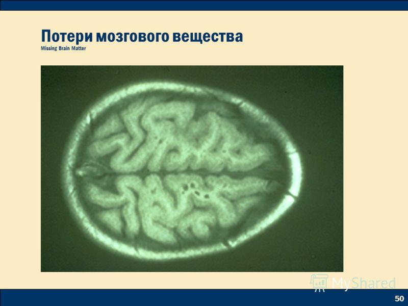 50 Потери мозгового вещества Missing Brain Matter