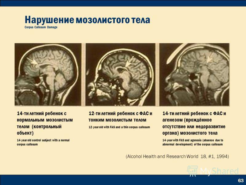 63 Нарушение мозолистого тела Corpus Callosum Damage 14-ти летний ребенок с нормальным мозолистым телом (контрольный объект) 14-year old control subject with a normal corpus callosum 12-ти летний ребенок с ФАС и тонким мозолистым телом 12-year old wi