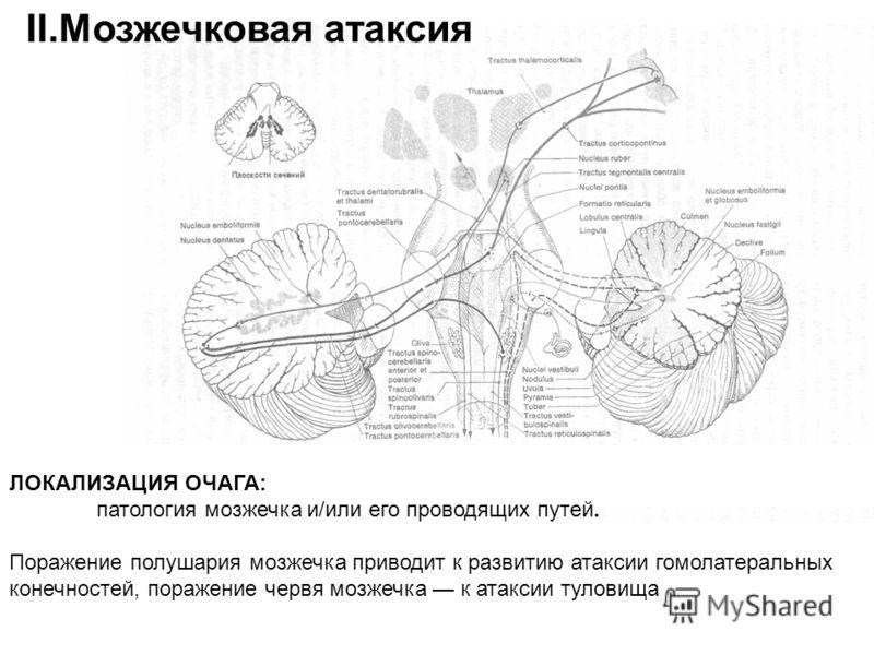 М ЛОКАЛИЗАЦИЯ ОЧАГА: патология мозжечка и/или его проводящих путей. Поражение полушария мозжечка приводит к развитию атаксии гомолатеральных конечностей, поражение червя мозжечка к атаксии туловища II.Мозжечковая атаксия