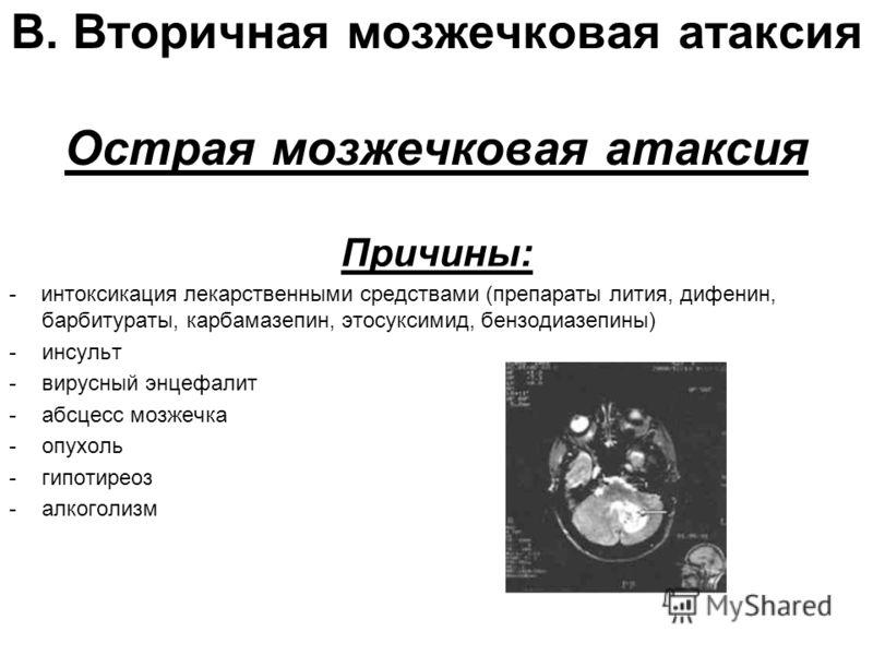 В. Вторичная мозжечковая атаксия Острая мозжечковая атаксия Причины: - интоксикация лекарственными средствами (препараты лития, дифенин, барбитураты, карбамазепин, этосуксимид, бензодиазепины) -инсульт -вирусный энцефалит -абсцесс мозжечка -опухоль -