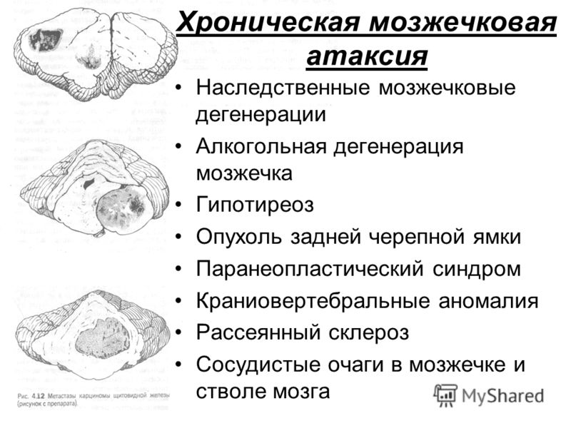 Хроническая мозжечковая атаксия Наследственные мозжечковые дегенерации Алкогольная дегенерация мозжечка Гипотиреоз Опухоль задней черепной ямки Паранеопластический синдром Краниовертебральные аномалия Рассеянный склероз Сосудистые очаги в мозжечке и