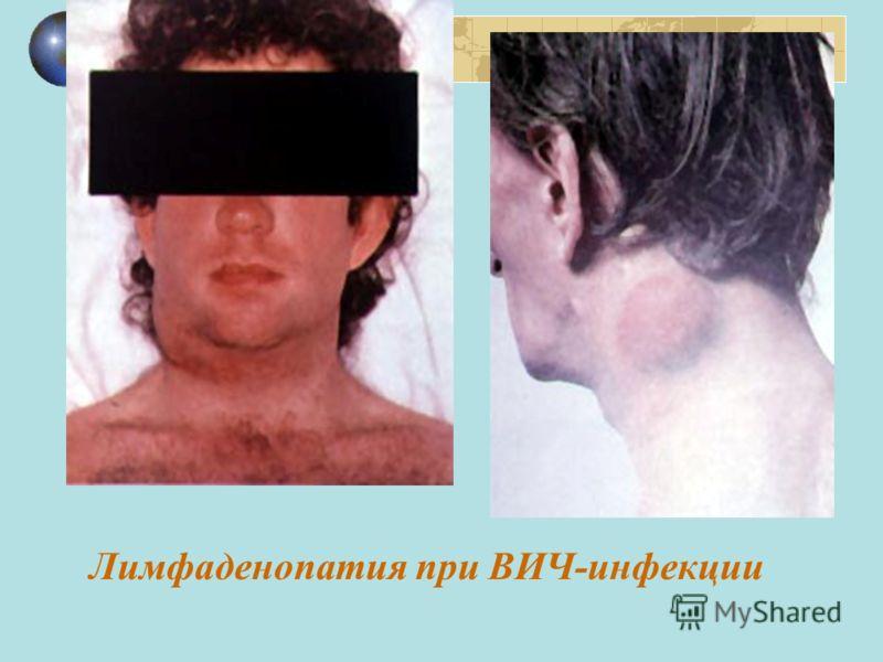 Лимфаденопатия при ВИЧ-инфекции