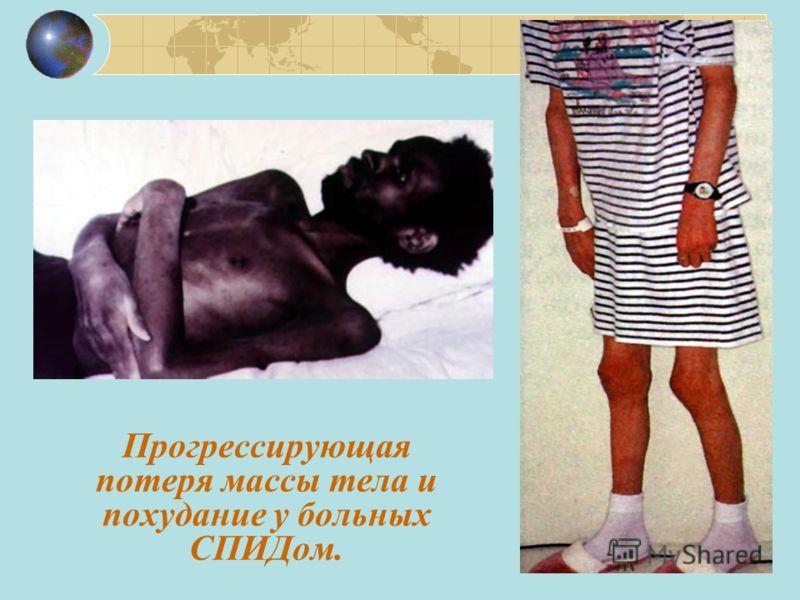 Прогрессирующая потеря массы тела и похудание у больных СПИДом.